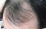ハゲの原因 ワタシの毛が抜けた理由はこうだった!