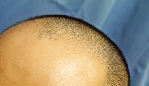 リアップX5プラスの副作用リバウンドでさらに髪が抜ける恐怖とは?